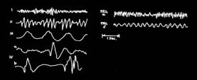 schumann-resonance-and-alpha-brainwaves